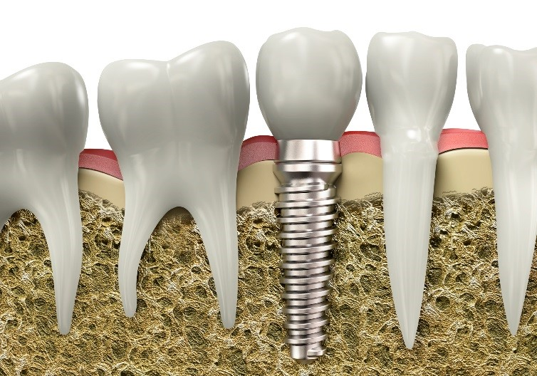 denture implants Sterling