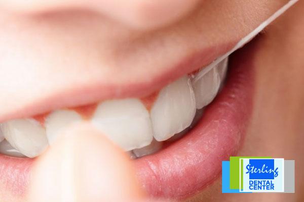 2016-09-dental-tip-one-flossing