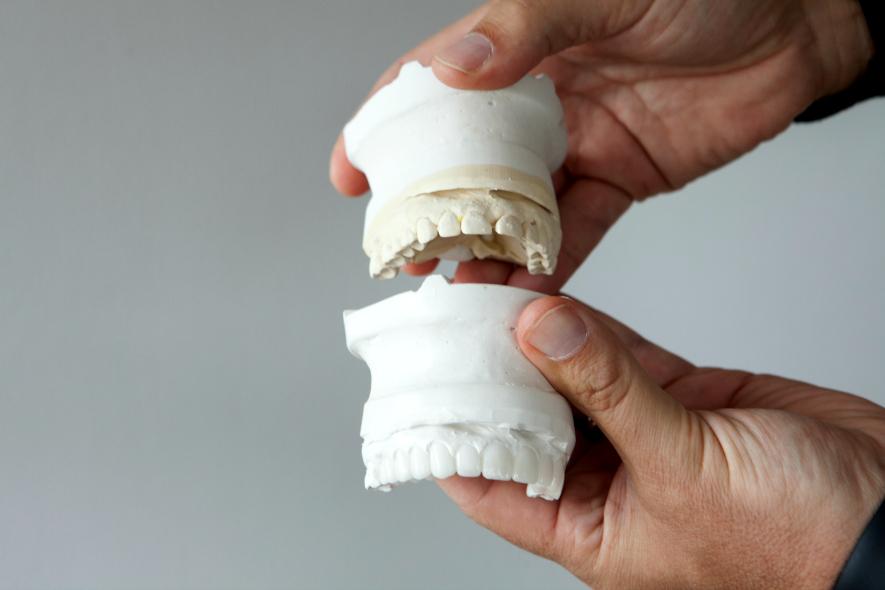 smile design cosmetic dental mock up in burke va 22015
