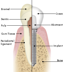 dental-implant1