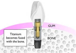 implant-fused-to-bone