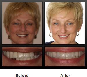 implant-smile2