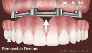 implants-support-removable-dentures
