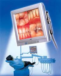 intraoral-camera-photo