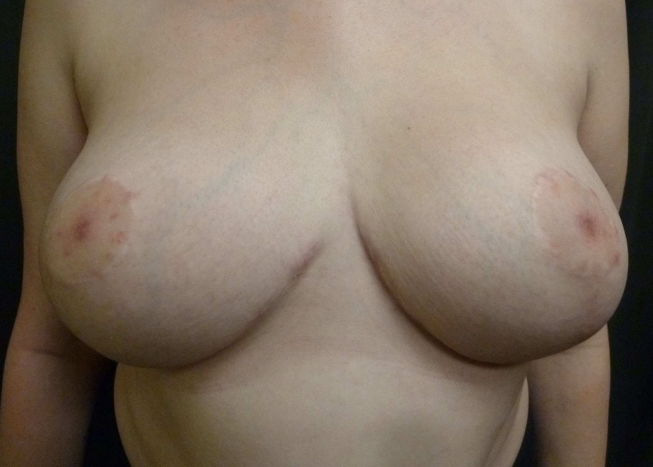Picture after a breast reduction