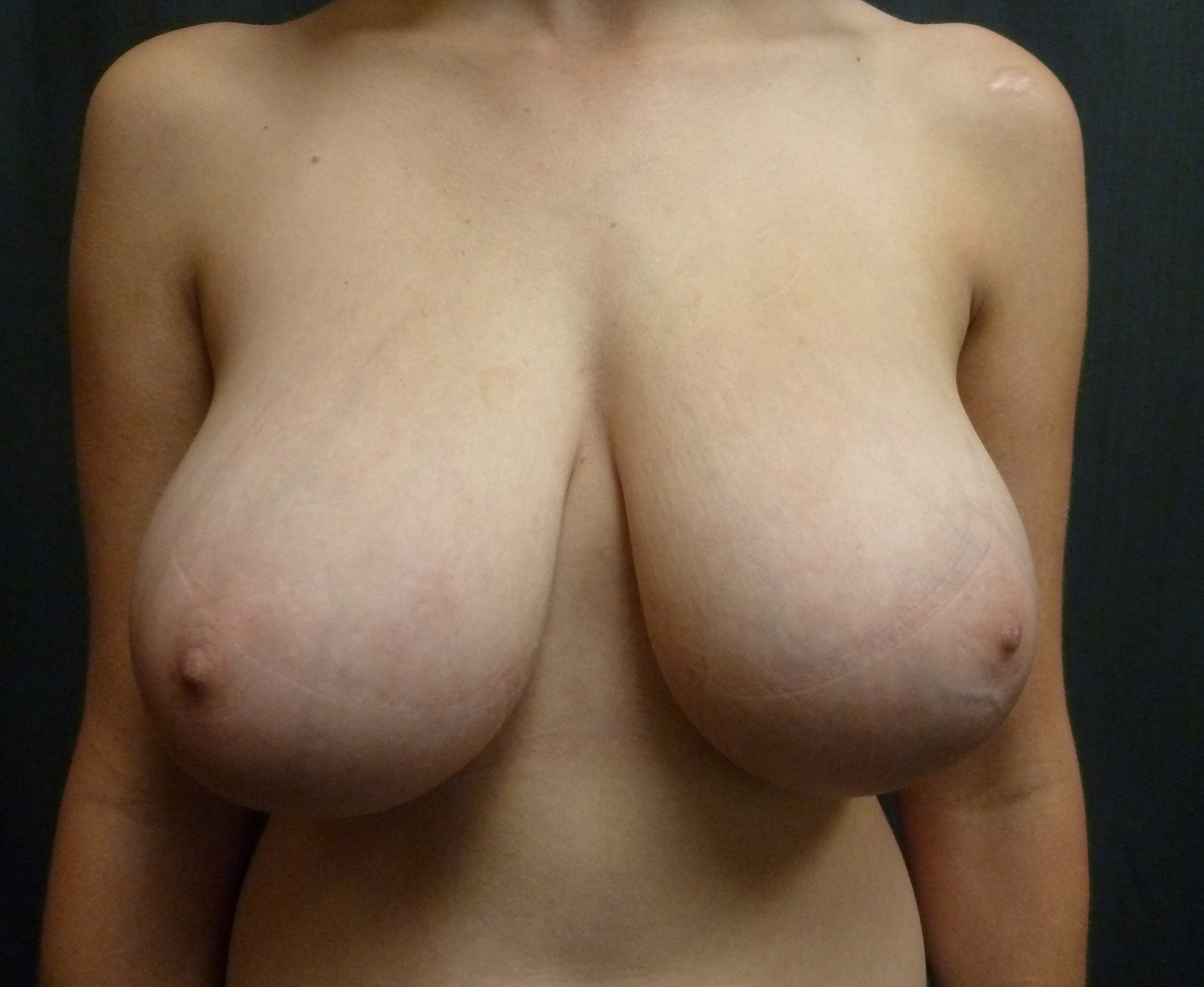 Breast Reduction Before & After Pictures - RealSelf