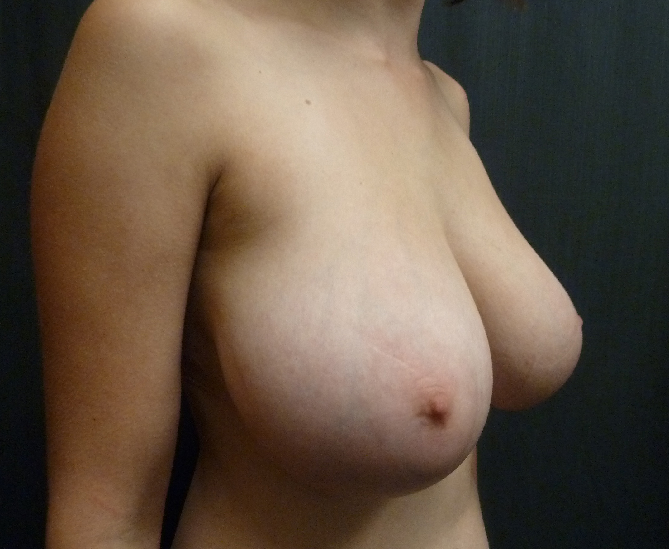 Ceydeli - Breast Implants