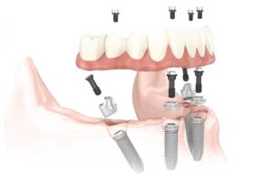 image for immediate teeth