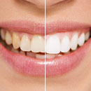 north kansas city teeth whitening