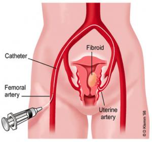 fibroidcath