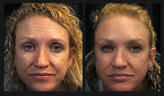 Botox Dysport Radiesse Obagi