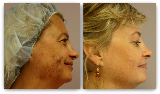 Laser Skin Rejuvenation Minneapolis Skin Laser Treatment