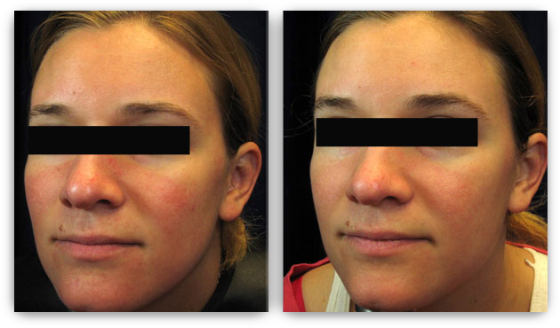 Laser skin treatment at Skin Rejuvenation Clinic in Edina.