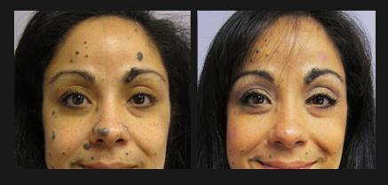 Non Surgical Mole Removal Minneapolis Skin Rejuvenation