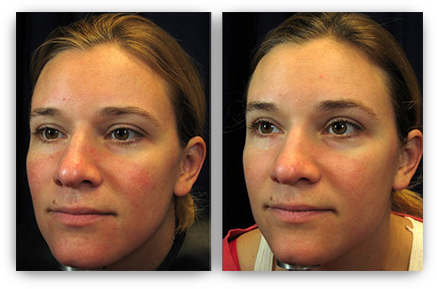 Rosacea Treatment Minneapolis Laser Treatment 55435