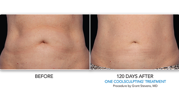 COOLSCULPTING GALLERY | Skin Rejuvenation Clinic Rewards And Recognition Programs