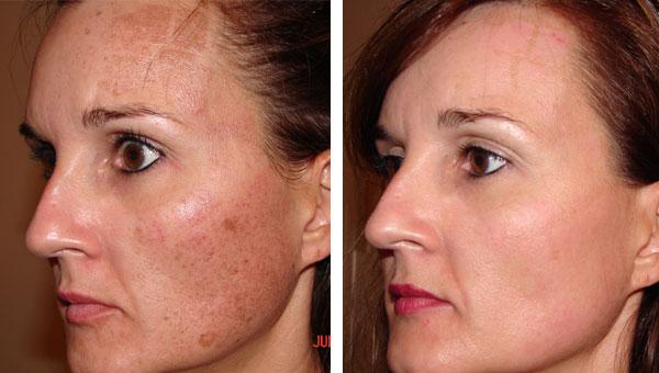 Age Spot Removal Gallery Skin Rejuvenation Clinic