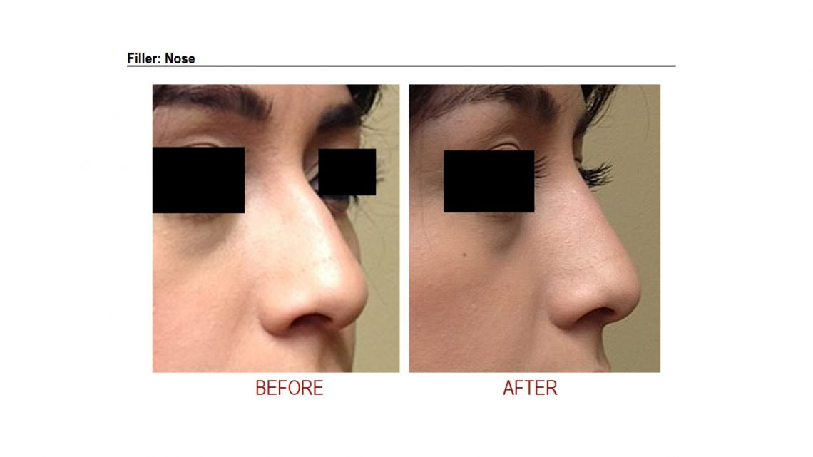 Injectables Gallery Skin Rejuvenation Clinic