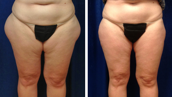 laser_liposuction_outer_thi_0