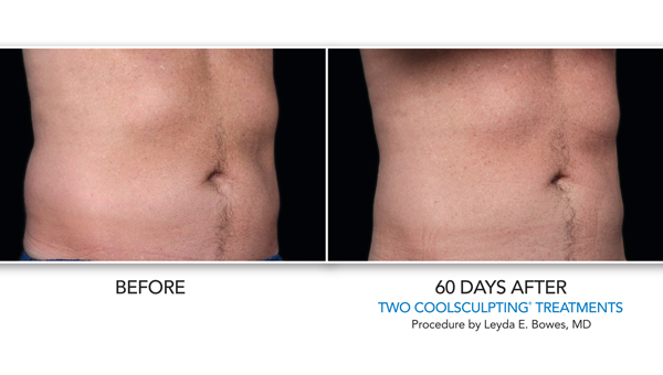 Coolsculpting Gallery Skin Rejuvenation Clinic