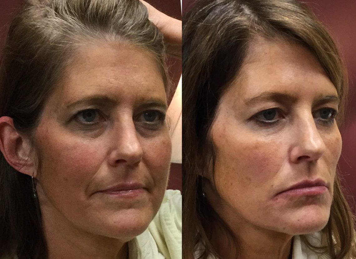 Filler in cheeks and chin