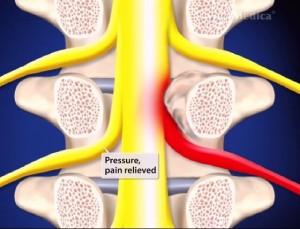Endoscopic Minimally Invasive