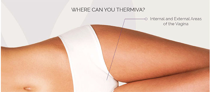 thermivawhere1