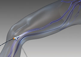Endovenous RadioFrequency Ablation