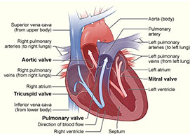 Mitral/Aortic Valvuloplasty