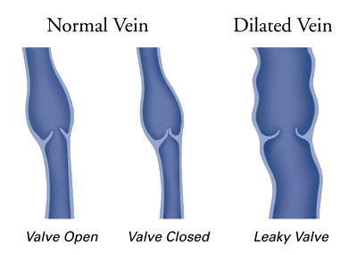 Normal_Vein_vs_Dilated_Vein