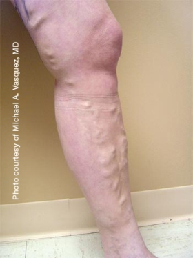 Pre-treatment-Leg